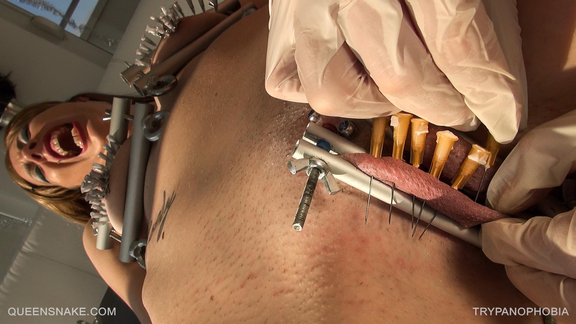 Favorite clit needles LOVE YOUR